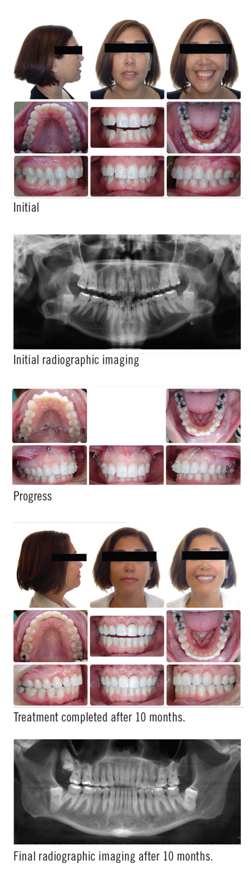 Maxillary Impaction with Aligners, TADs, and Low Pulsatile