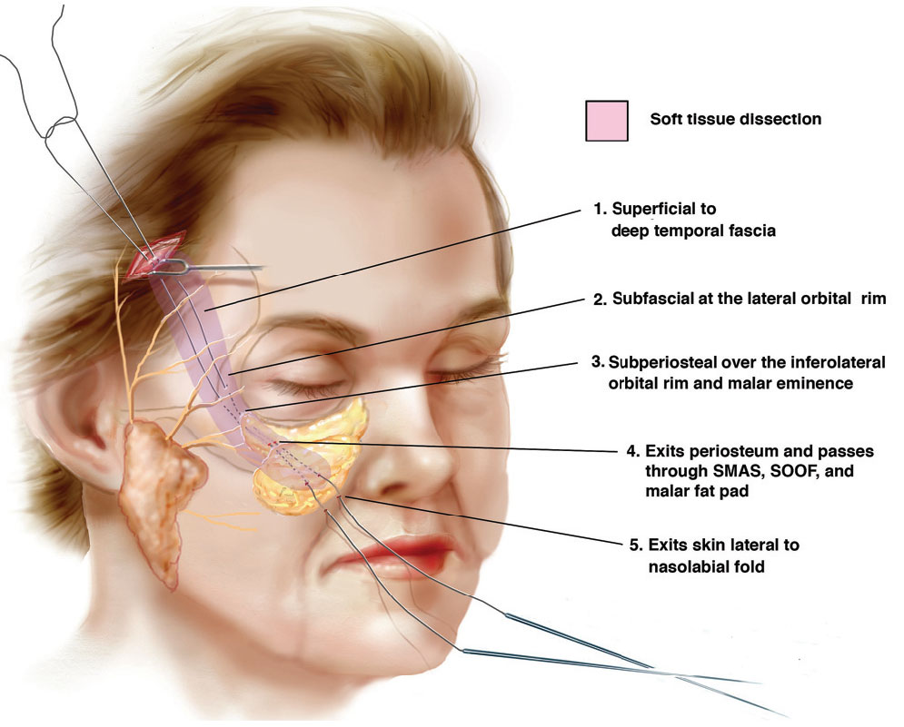 Notes From The Field The Midface Lift Plastic Surgery