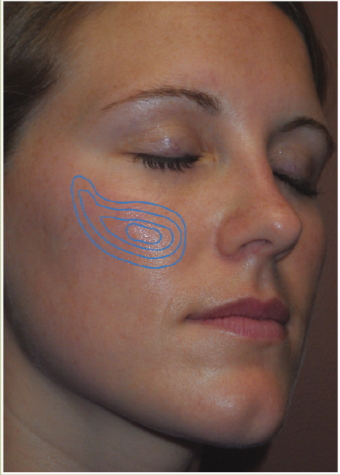 the FACE | Sweet Cheeks - Plastic Surgery Practice