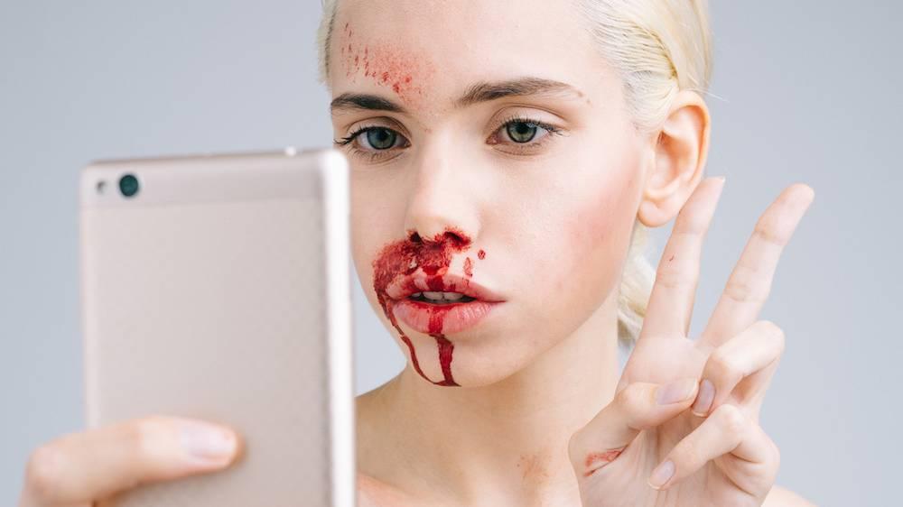 Inside Instagram's Secretive Plastic Surgery Support ...