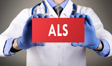 Sensory Neurons May Provide New ALS Treatment Insights