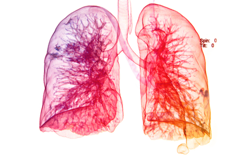 Breakthrough Therapy Designation >> Promising Treatment for Acute Respiratory Distress ...