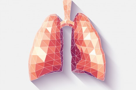 Using Dynamic Digital Radiography to Diagnose Dyspnea | RT
