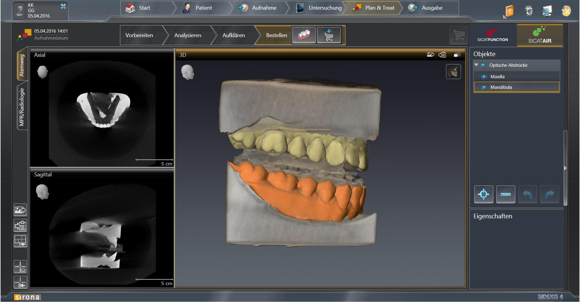 Why Digital Workflows Are Gaining Ground in Dental Sleep Medicine