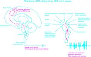 RBD schematic