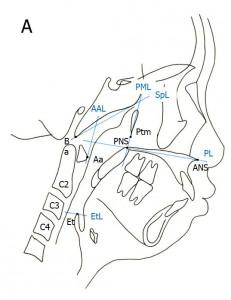 adenoidtonsils1a